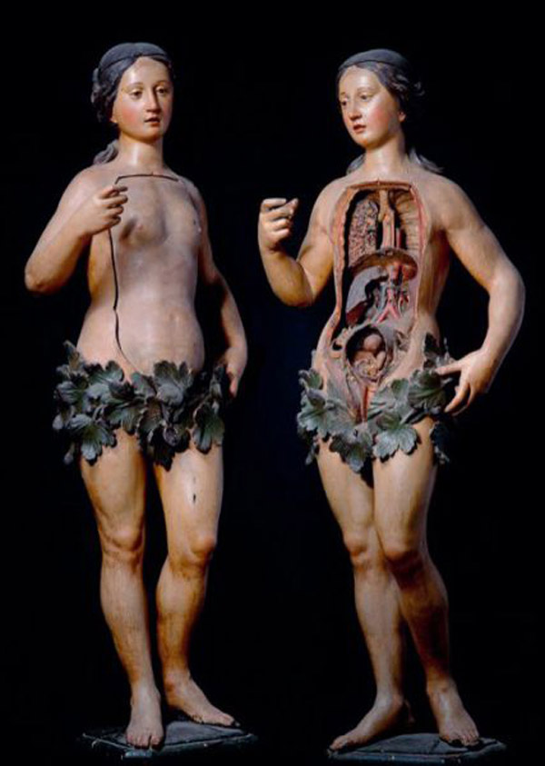 Well and Unwell: The Body in the Nineteenth Century (possibly NSFW ...